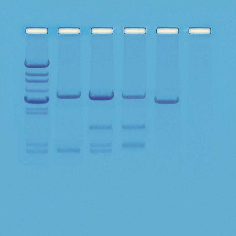 Kit zur Vaterschaftsanalyse (PCR)