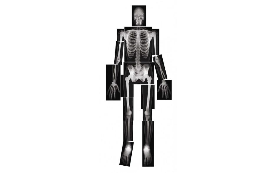 Röntgenbilder Mensch